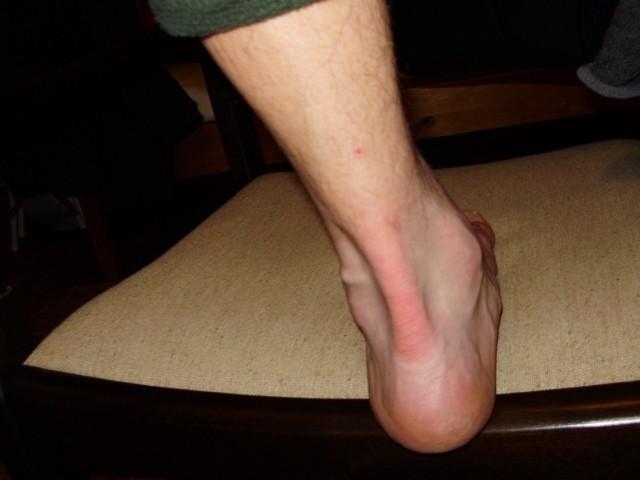 Achilles fájdalom – kínoz a sarkad