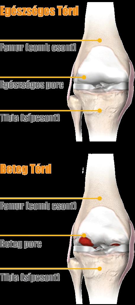 a térd artrózisával felszaporodhat