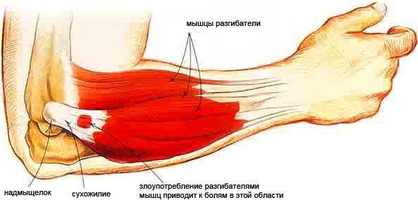 a térdízület ii. fokozatának artrózisa kezeléssel térdízület ízületi gyulladása gyógyszer
