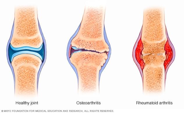 chondroxitis arthrosis kezelés