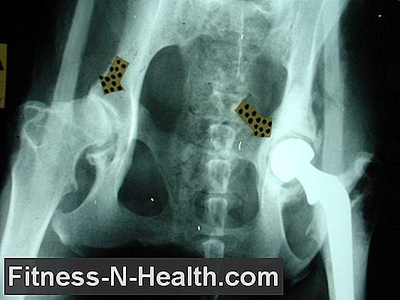 VI. A felnőttkori csípőízületi betegségek - PDF Ingyenes letöltés