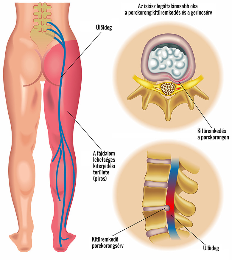 csigolya-ízületek, artrózis tüneteivel