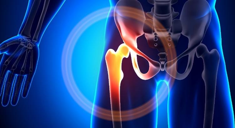 A csípőfájdalom okai és kezelése - Gyógytornásebinko.hu - A személyre szabott segítség