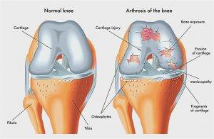 csípőfájás háthosszabbítással