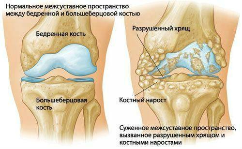 csípőkárosodás besorolása