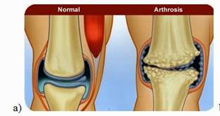 csípőízület artrózisa 2 fokkal, hogyan kell kezelni)
