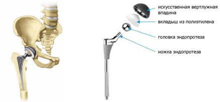 csípőízületek artrózisa 4 fok