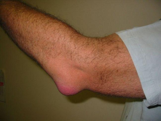 a könyökízület epikondilitisz gyulladása okozza