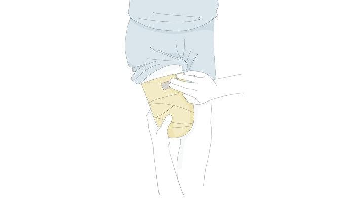 a vállízületek ízületi tünetei és kezelése