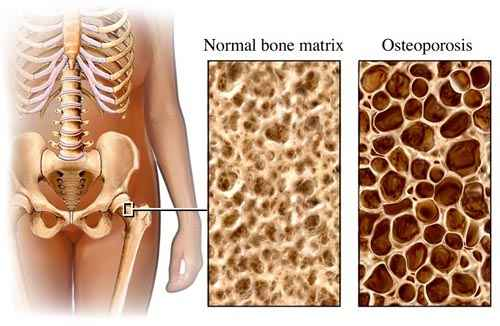 ízületi csontritkulás hogyan kell kezelni)