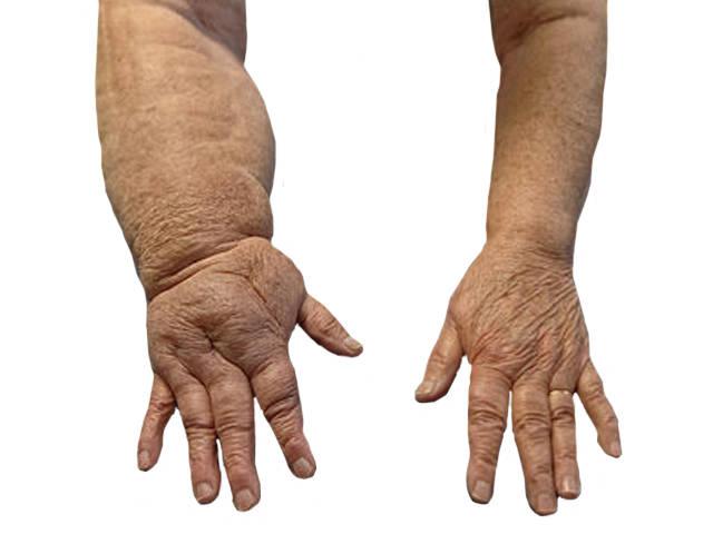 arthritis boka vélemények)