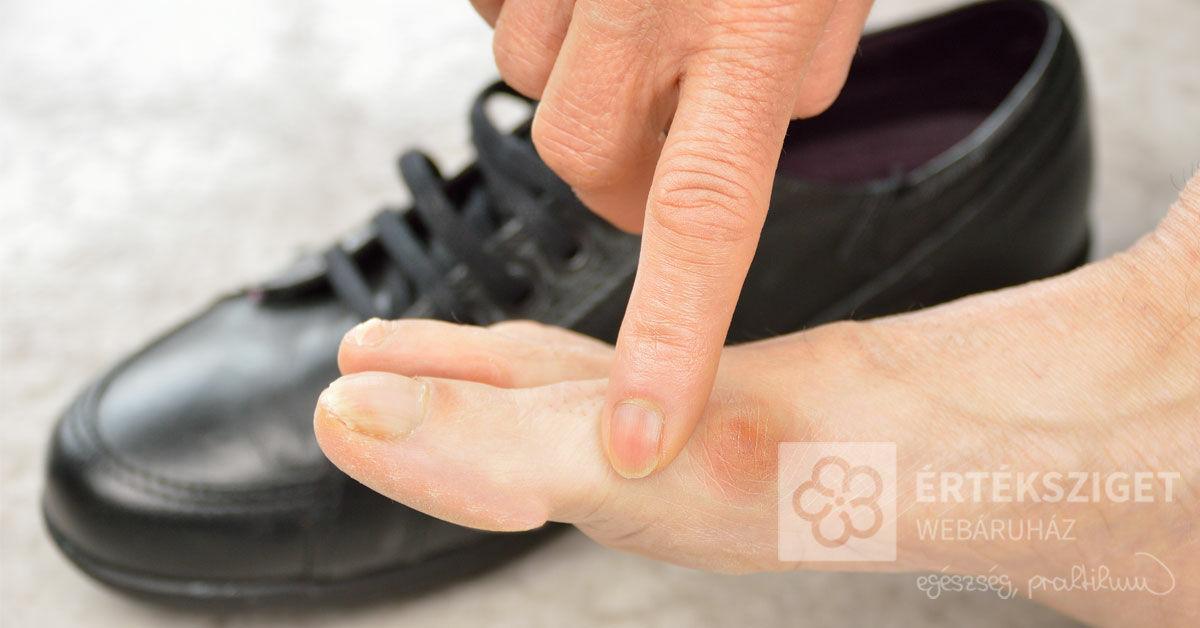 krém a lábak ízületének fájdalmához