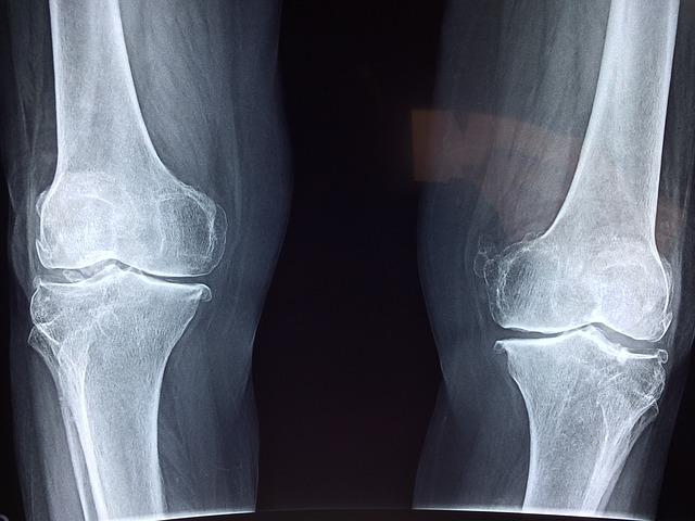 a térd femoropatellaris artrózisa)