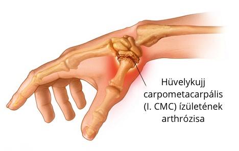 fájdalom a hüvelykujjai ízületeiben)