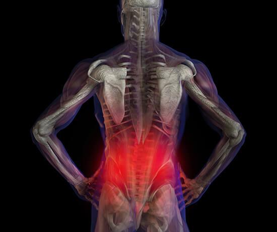 az alsó hátfájás tüneteinek kezelése)