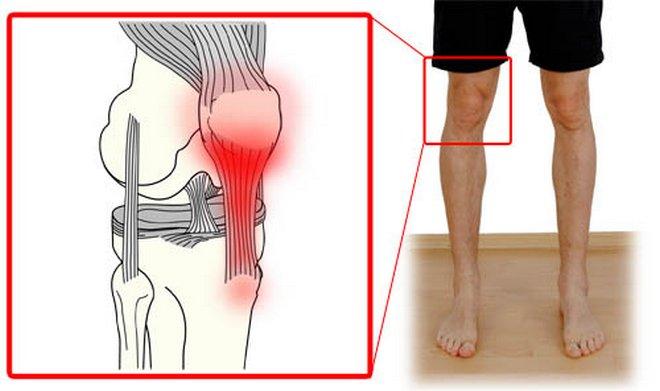 deformáló artrózis a térdízület kezelése 3 fokkal