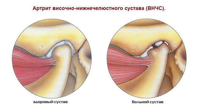 dexalgin ízületi fájdalmak esetén)
