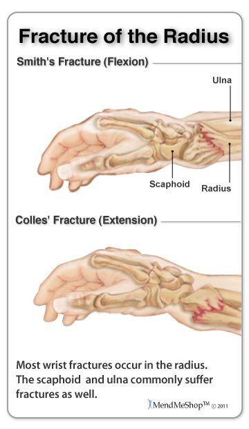carpal carpal ízületi fájdalom kirlena ízületi fájdalom
