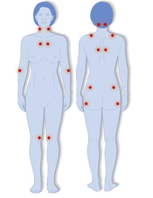 hogyan lehet lefogyni a térd artritiszével ahol az ízületeket burjatiában kezelik