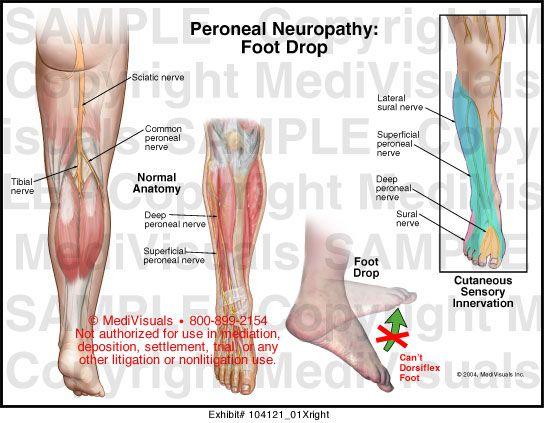ízületi fájdalomfólia kezelés térdízületi fájdalom 1 fokos