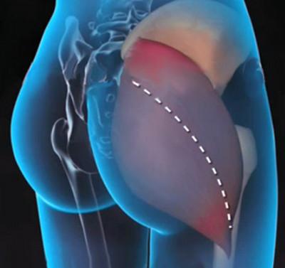 a csípőízület kezdő artrózisa)