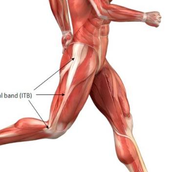 iliotibial band syndrome itbs jelentése magyarul