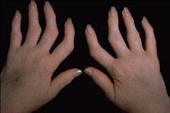 artritisz ujj deformáció rheumatoid arthritis kéz tünetek kezelése