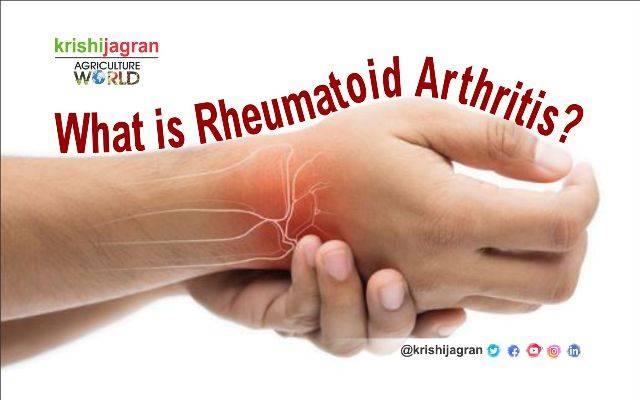 rheumatoid arthritis beginning stages)
