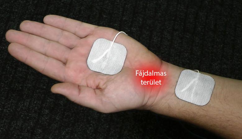 csukló artrózis kezelési módszerek
