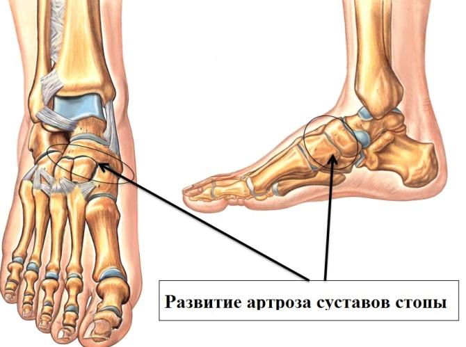 a lábak ízületeinek deformáló artrózisa izületi fájdalom vitamin