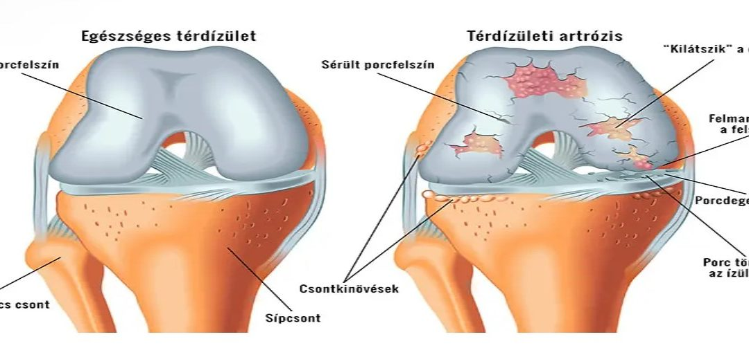 a térd akut artrózisa, mit kell tenni
