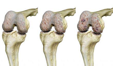 a metatarsofalangealis ízületek artrózisának kezelése)