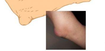 emberi könyök csontritkulás miért fájnak a lábízületek kezelési módszerei
