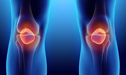 hogyan lehet eltávolítani az ízületi duzzanatot artrózissal)