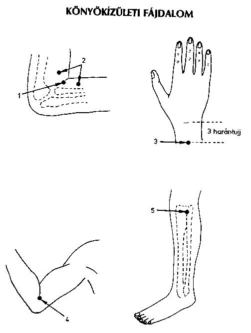 csípő megkönnyebbülés gyakorlatok