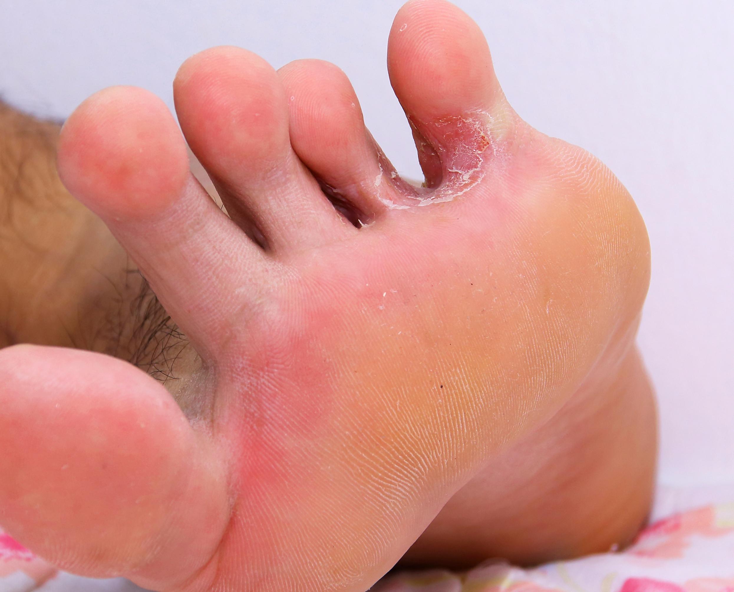 lábujj közötti kipállás a csípőízület, ahol fáj