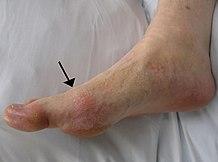 mint a térdízület fájdalmainak kezelésére az ujjízületek fájnak, mit kell tenni