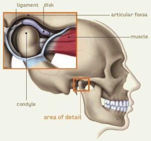 Állkapocs ízületi gyulladás 6 lehetséges oka - Arthuman Központ
