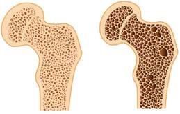 Gyanújelek, tünetek, vizsgálatok - A csontritkulás megelőzése és kezelése