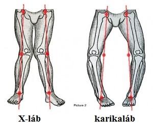 az alsó lábszár artrózisának kezelése)
