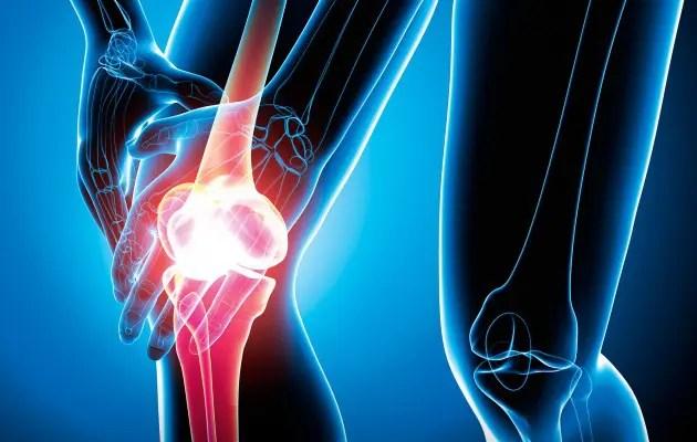 effúziós térdízület kezelés csípőideg-gyulladáskezelés