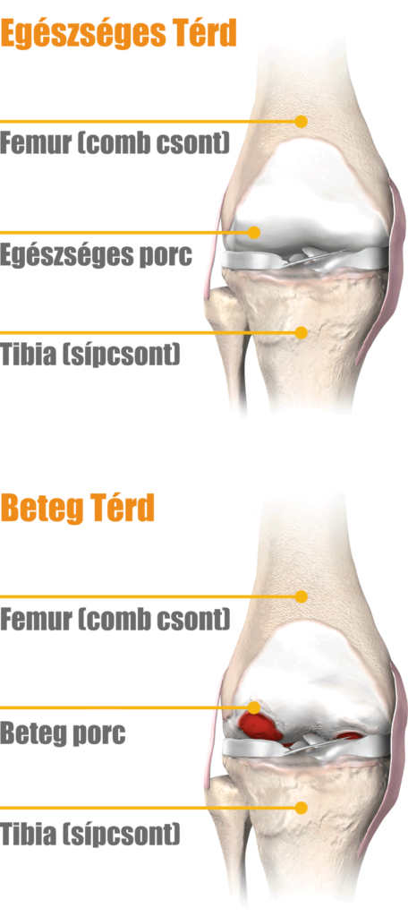 a térd artrózisának műtéti kezelése)