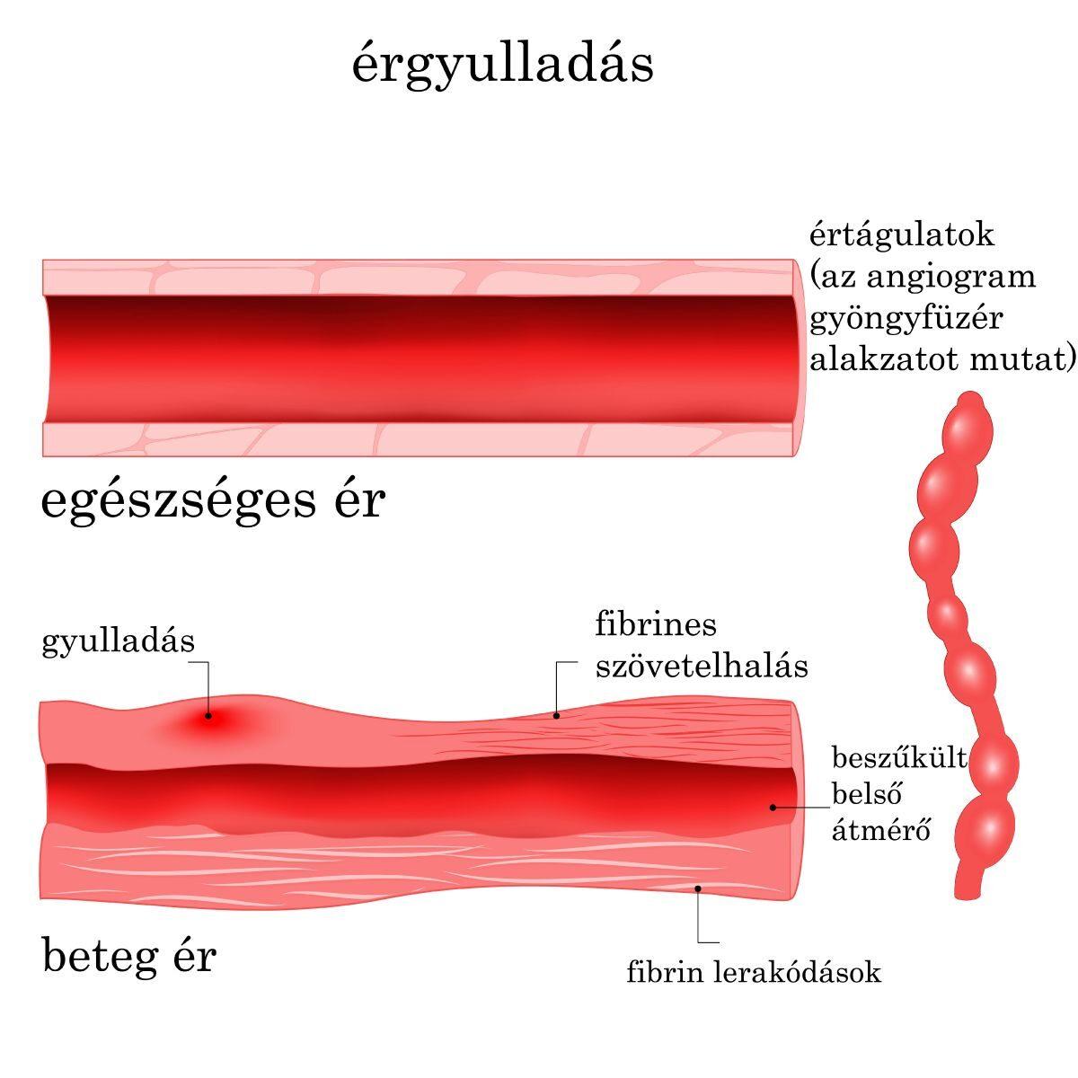 vasculitis ízületek kezelése