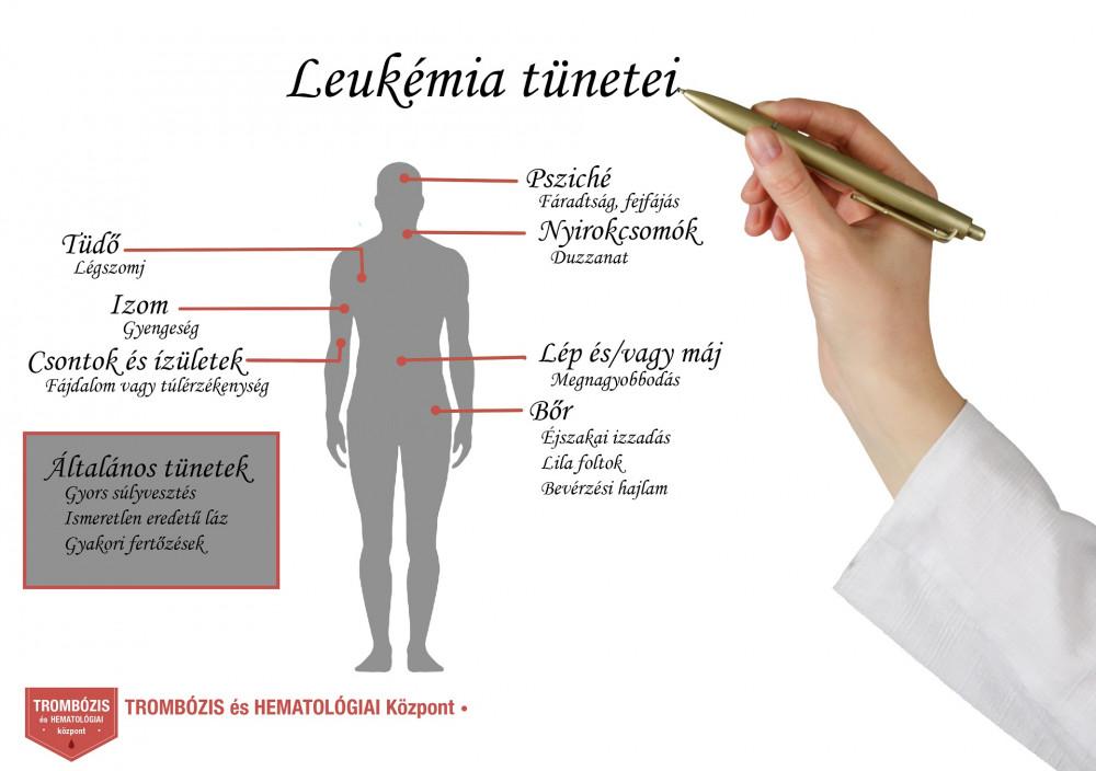 leukémia esetén ízületi fájdalmak)