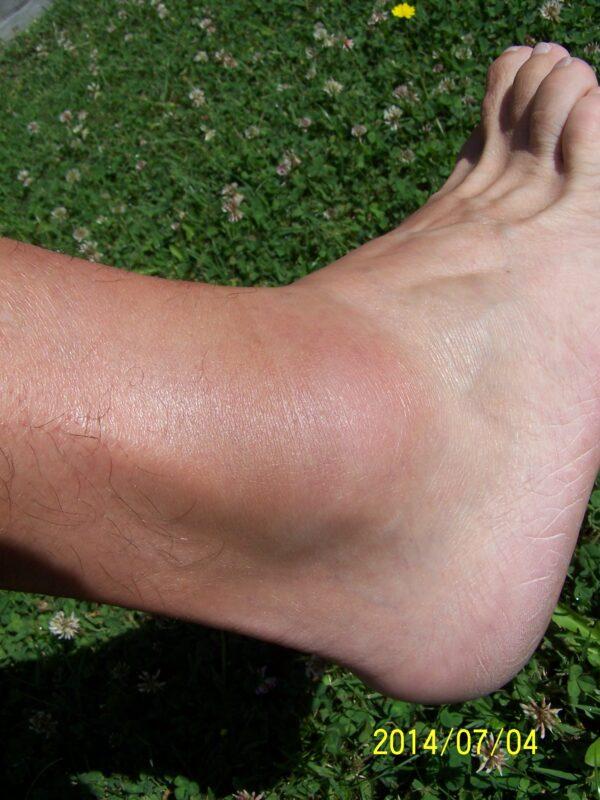 duzzadt bokaízület a jobb lábon