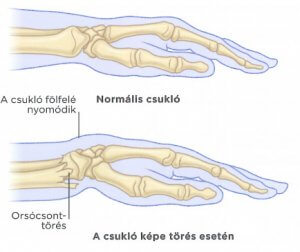 fájdalmak törése a kéz ízületeiben)