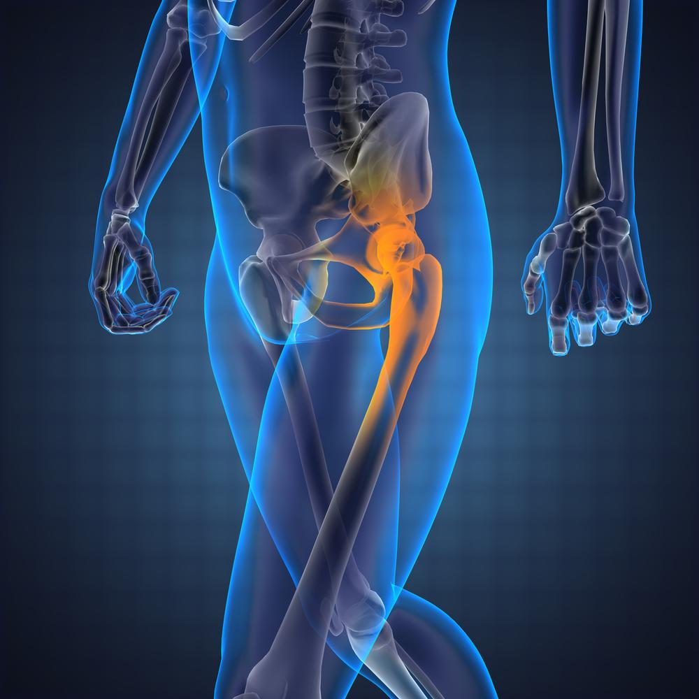 fájdalom a csípő ízületeiben. kezelés