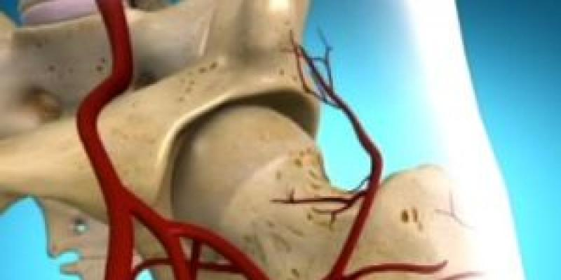 fájdalom a csípőízület aszeptikus nekrózisával