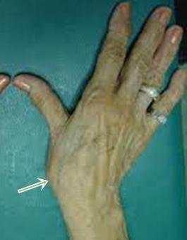 fájdalom a hüvelykujj bal kezének ízületében)