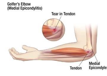 köszvényes lábujj artritisz torna térdfájdalomra